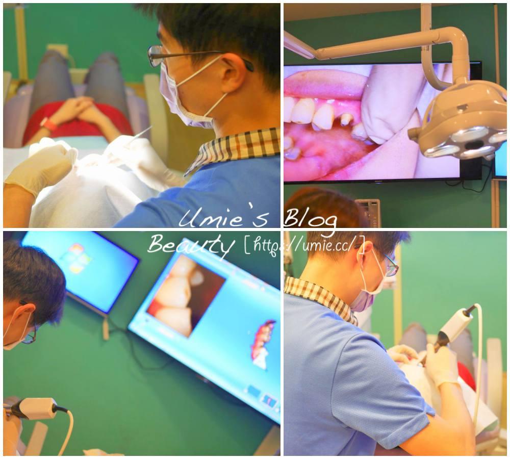 台北牙醫推薦悅庭牙醫 2小時就搞定假牙(牙套)、植牙!3D掃描技術,再也不用來回花時間等假牙了!