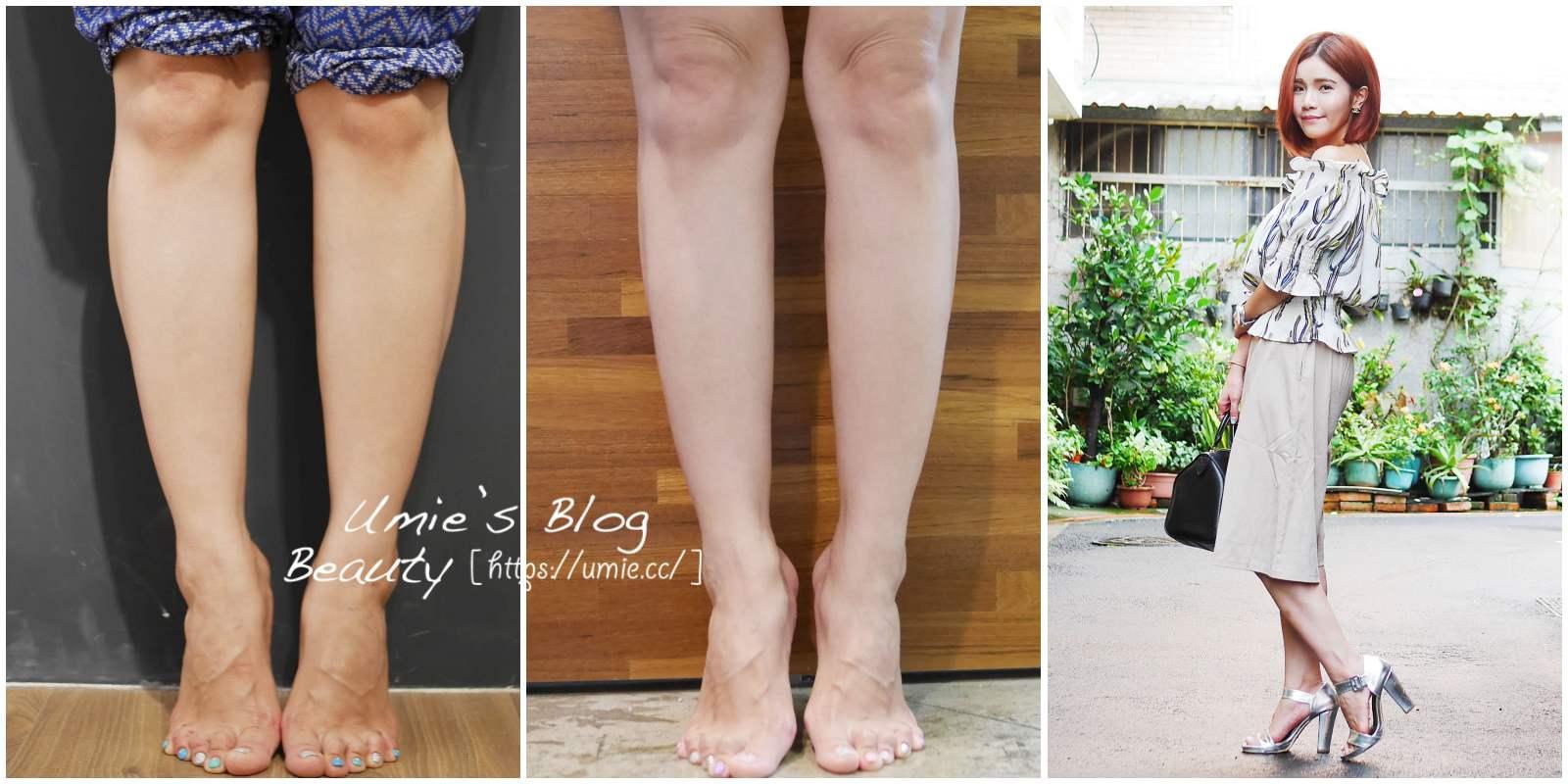 板橋醫美|忍了二年,還是去打了肉毒桿菌素小腿!成果大滿意!!(側面肌肉線條超愛!)